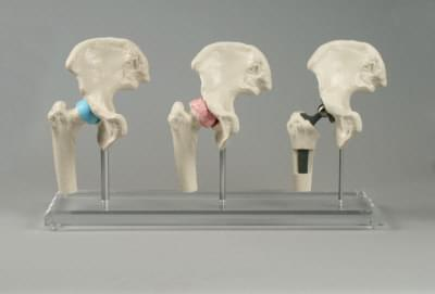1115 - Hip-Implant-Model