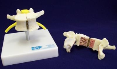 Vertebra Showing Arthritis And Osteoporosis
