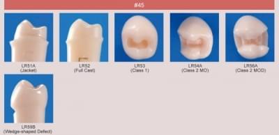 Abutment, Cavity Preparation Tooth Model (#45)