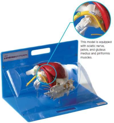 Transparent 3D Acupuncture Site Model of Sciatic Nerve
