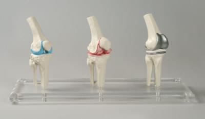 1125 - Knee-Impant-Model