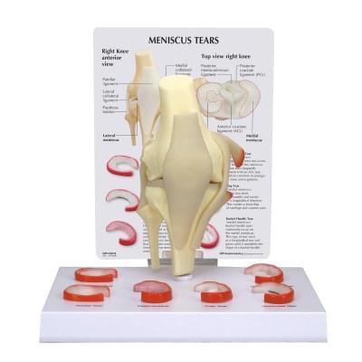 Model menisku kolene se 6 natrženími
