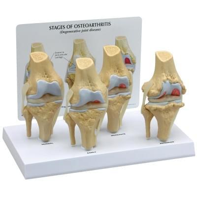 Kolenní kloub, 4 stupně osteoartrózy