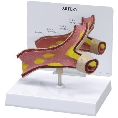 1019531 - Artery Model