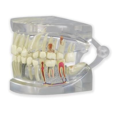 1019540 - Clear Human Jaw with teeth model