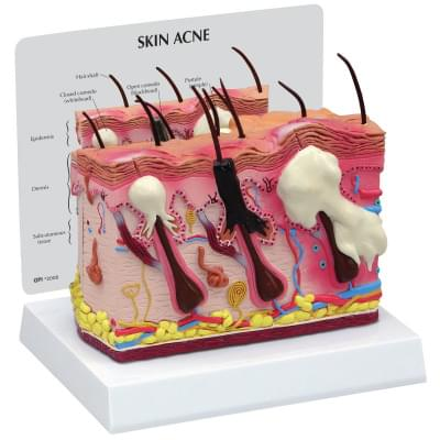 1019568 - Skin Acne Model, 2 Sided