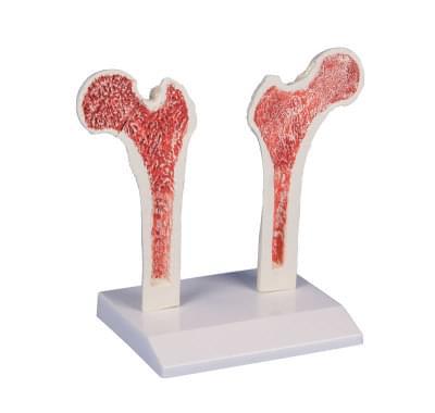 4030 -  Osteoporosis-femur