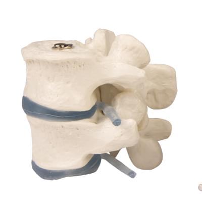 4090 - 2 lumbar vertebrae