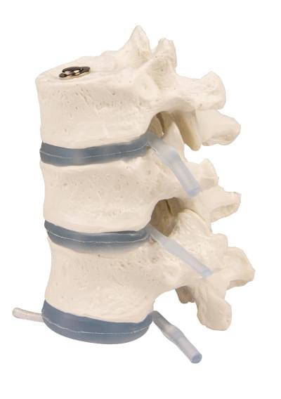 4092 - 3 thoracic vertebrae