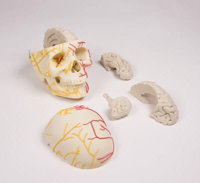 4610 - Neurovascular skull