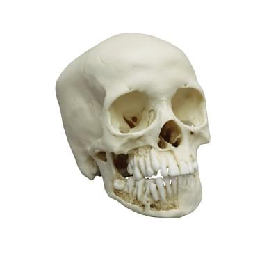 4725 - Child skull, 10 year old