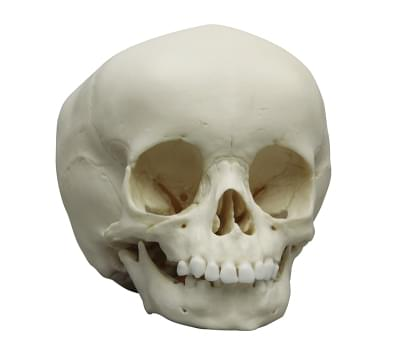4740 - Child skull, 3 year old