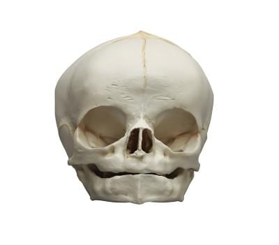 4745 - Fetus skull, 40. week