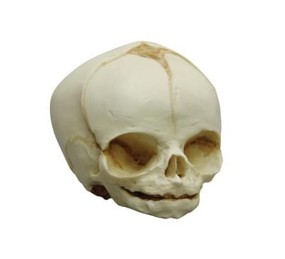 4755 - Fetus skull, 24. week