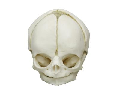 4760 - Fetal skull 29 weeks