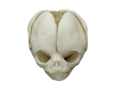 4765 - Fetal skull 20 weeks
