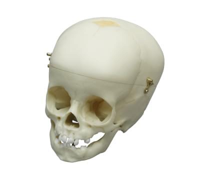 4770 - Child skull, 1 year old