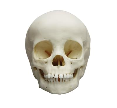 4776 - Child skull, 3 year old