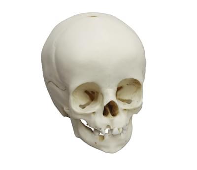 4777 - Child skull, 14 months old