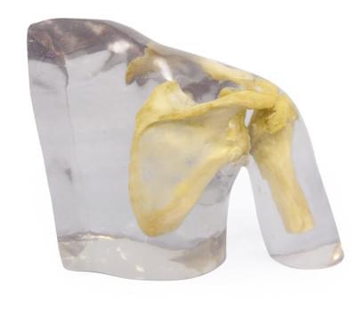 7340 - X-ray phantom shoulder, transparent