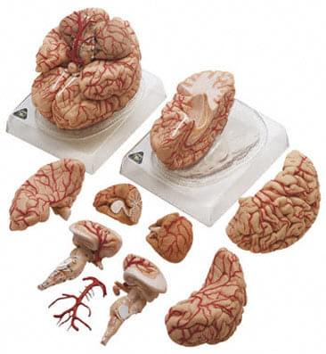 BS 23 - Brain with Arteries