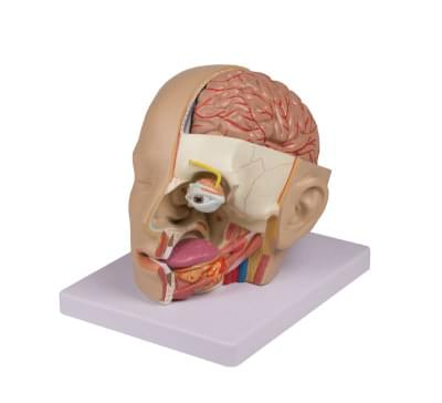 6030.03 - Head Dissection, 4 parts