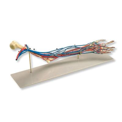 Vascular Arm