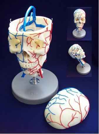 Vascular Skull