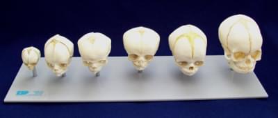 Foetal Skull Sextet