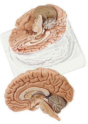 BS 21 - Brain