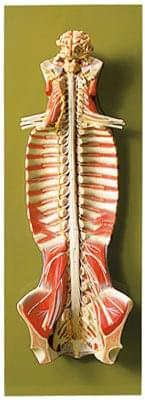 BS 31 - Spinal Cord in the Spinal Canal