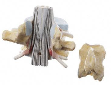 BS 28 - Lumbar Vertebra (L II) with Lumbar Region of Spinal Cord