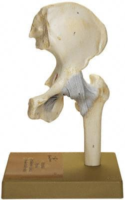 NS 20 - Hip Joint