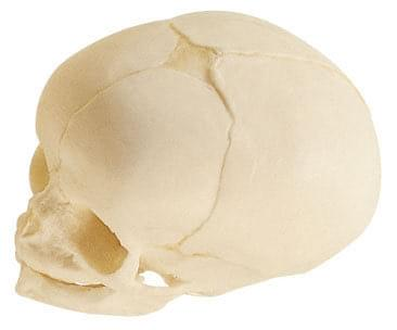 QS 3/3 - Artificial fetal skull