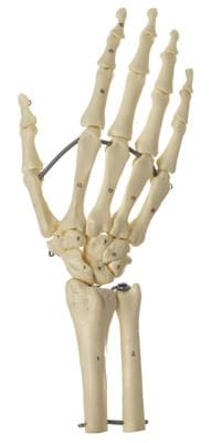 QS 31/7 - Skeleton hand with part of the forearm (wires connected)
