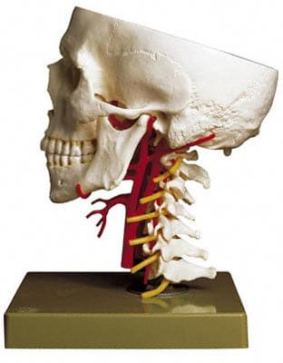 QS 65/6 - Artificial Base of Skull with Arteries