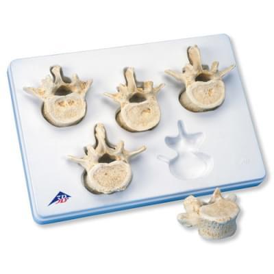 A792 - Set of 5 Lumbar Vertebrae