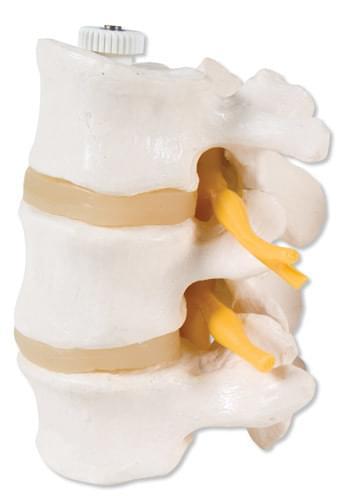 A76/8 - 3 Lumbar Vertebrae, flexibly mounted
