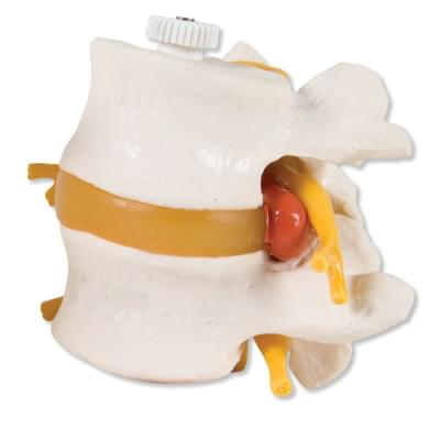 A76/9 - 2 Lumbar Vertebrae with prolapsed disc, flexibly mounted