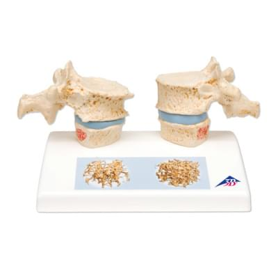 A95 - Osteoporosis Model