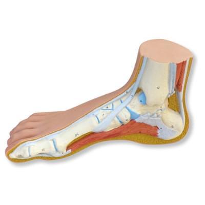 M30 - Normal Foot