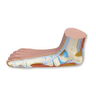 M31 - Flat Foot (Pes Planus)