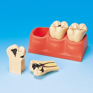 4× Size Caries Study Model PE-TDS006