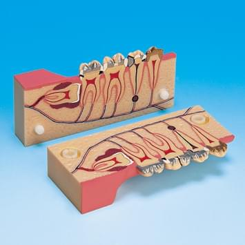 Molar Cross Section Study Model PE-TDS007