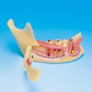 Mandibular Study Model PE-TDS008