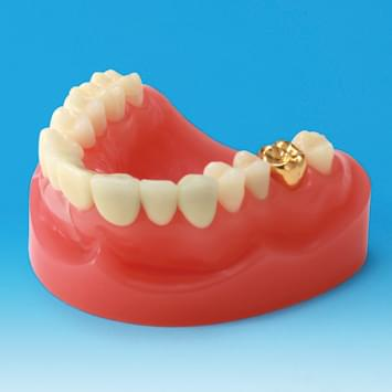 Dental Restoration/Prosthesis Study Model PE-PRO001