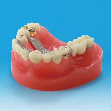 Dental Restoration/Prosthesis Study Model PE-PRO002