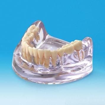 Implant Model PE-IMP003