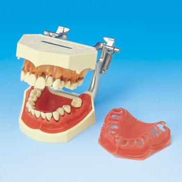 Periodontal Disease Model PE-PER001