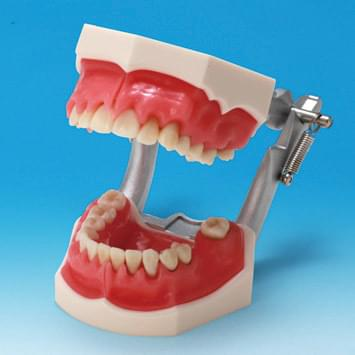 Periodontal Disease Model PE-PER003